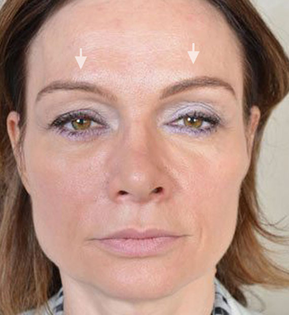 Brow lift - Before Treatment Photo - female, front view, patient 3
