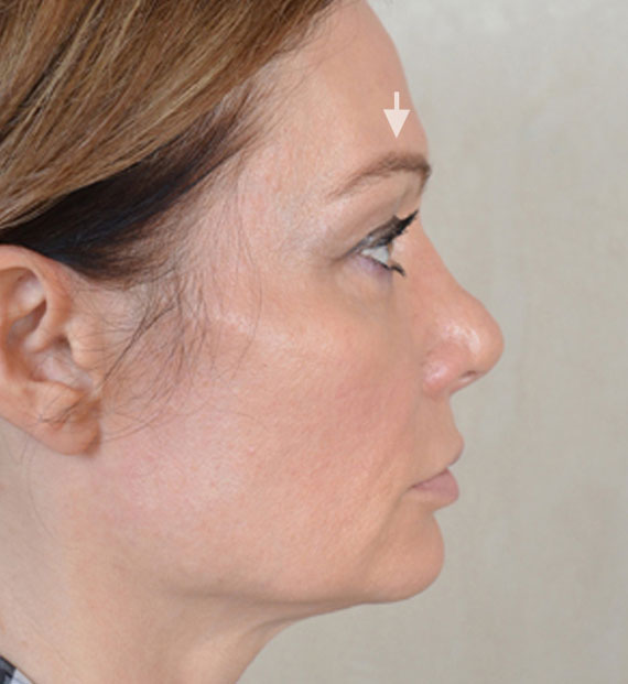 Brow lift - Before Treatment Photo - female, right side view, patient 3