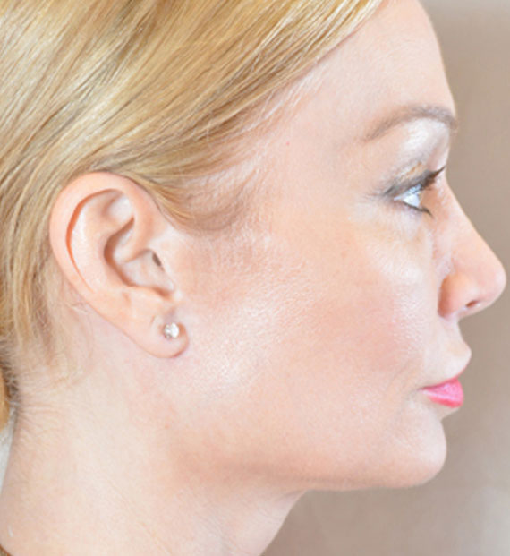 Brow lift - After Treatment Photo - female, right side view, patient 3