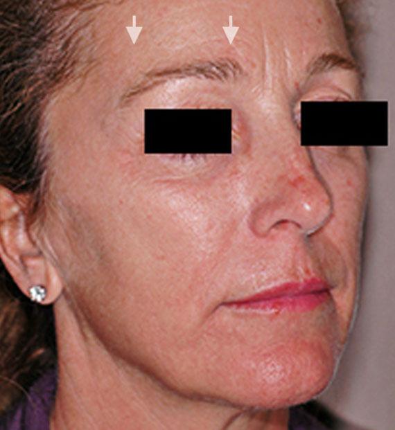 Brow lift - Before Treatment Photo - female, oblique view, patient 4