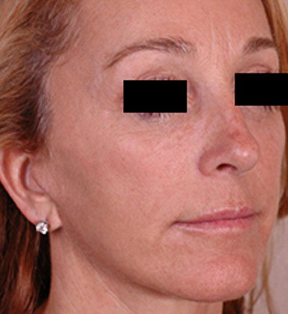 Brow lift - After Treatment Photo - female, oblique view, patient 4