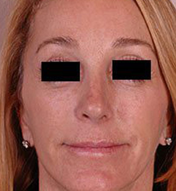 Brow lift - After Treatment Photo - female, front view, patient 4