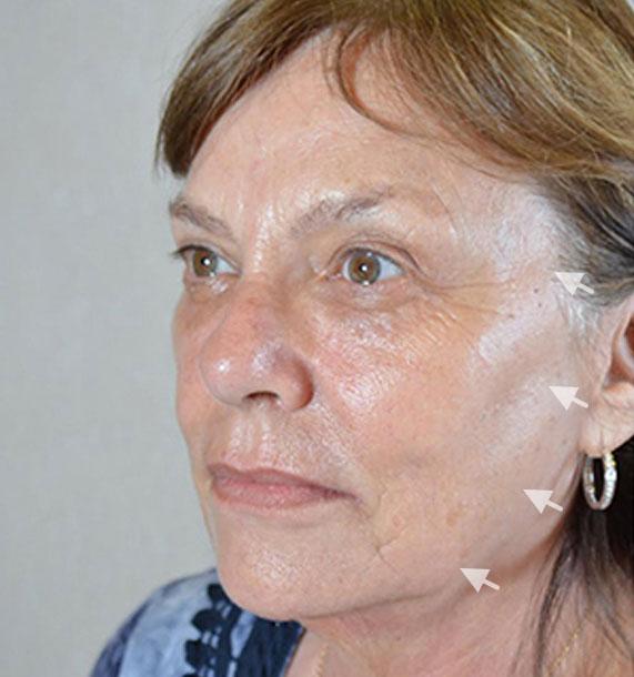 Mini Face Lift Procedure: Before Treatment Photo - female, oblique view, patient 11