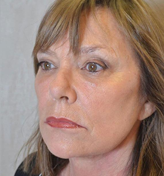 Mini Face Lift Procedure: After Treatment Photo - female, oblique view, patient 11