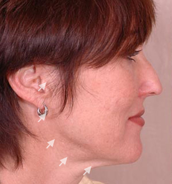 Mini Face Lift Procedure: Before Treatment Photo - female, right side view, patient 14