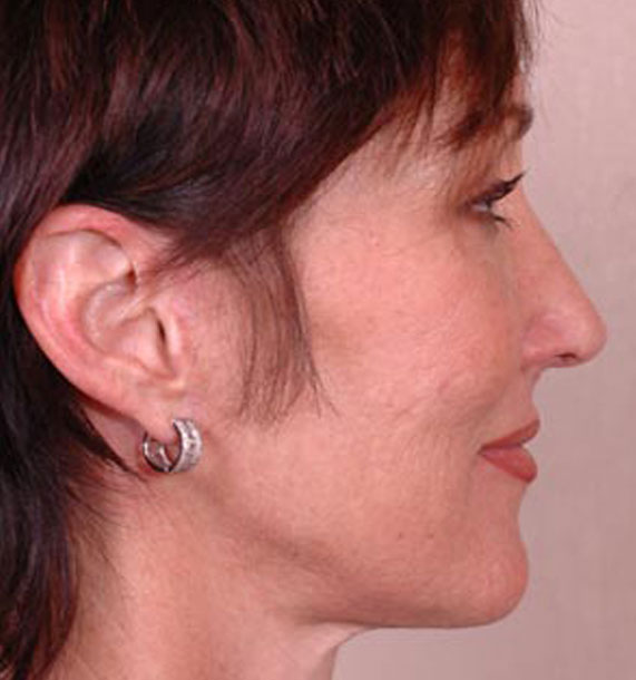 Mini Face Lift Procedure: After Treatment Photo - female, right side view, patient 14