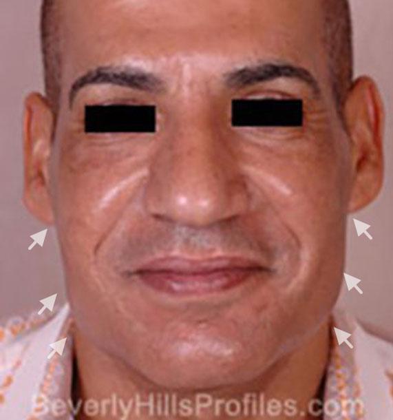 Mini Face Lift Procedure: Before Treatment Photo - male, front view, patient 15