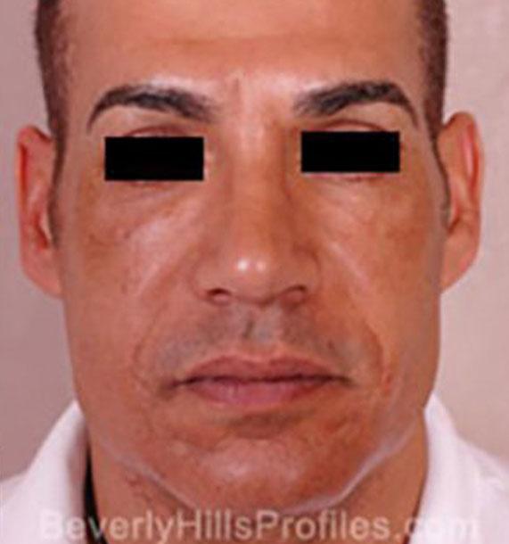 Mini Face Lift Procedure: After Treatment Photo - male, front view, patient 15