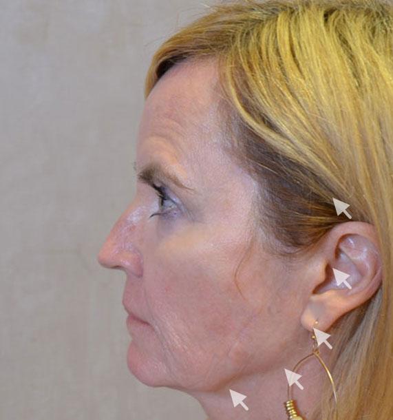 Mini Face Lift Procedure: Before Treatment Photo - female, left side view, patient 16