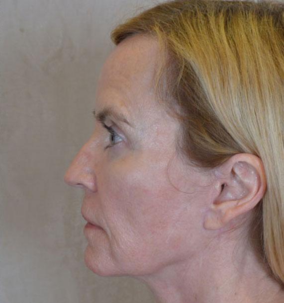 Mini Face Lift Procedure: After Treatment Photo - female, left side view, patient 16