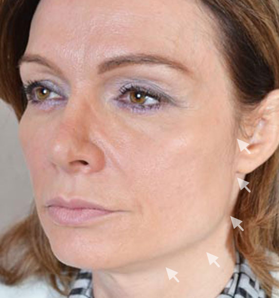 Mini Face Lift Procedure: Before Treatment Photo - female, oblique view, patient 12