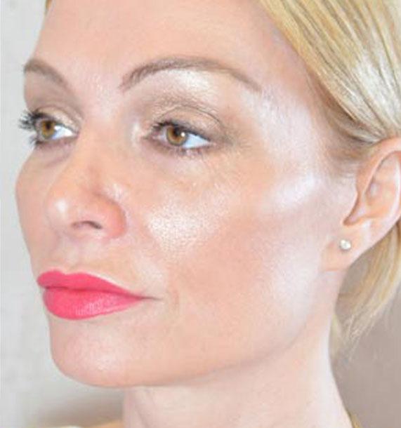 Mini Face Lift Procedure: After Treatment Photo - female, oblique view, patient 12