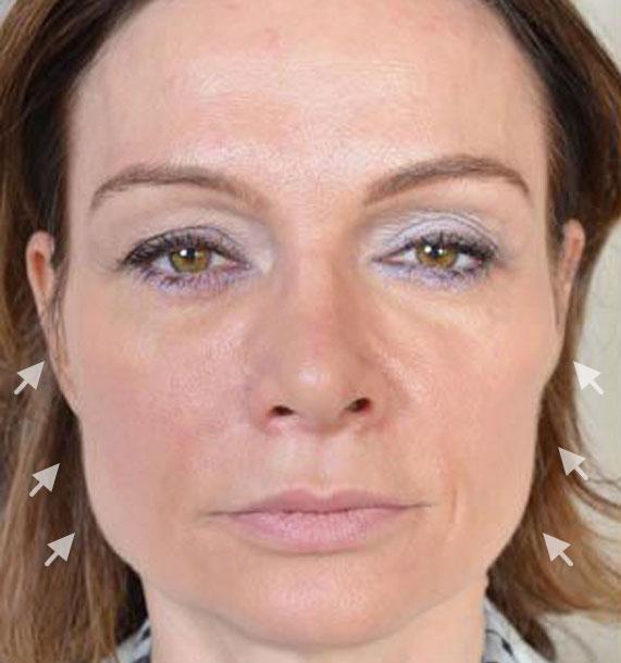Mini Face Lift Procedure: Before Treatment Photo - female, front view, patient 12