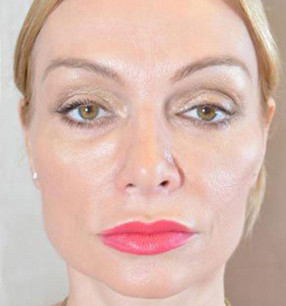 Mini Face Lift Procedure: After Treatment Photo - female, front view, patient 12