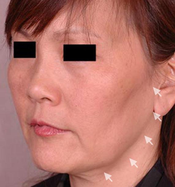 Mini Face Lift Procedure: Before Treatment Photo - female, oblique view, patient 13
