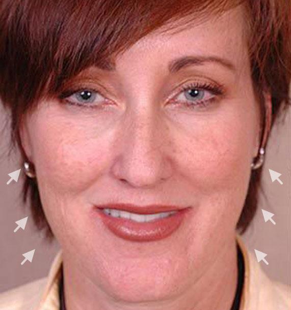 Mini Face Lift Procedure: Before Treatment Photo - female, front view, patient 14