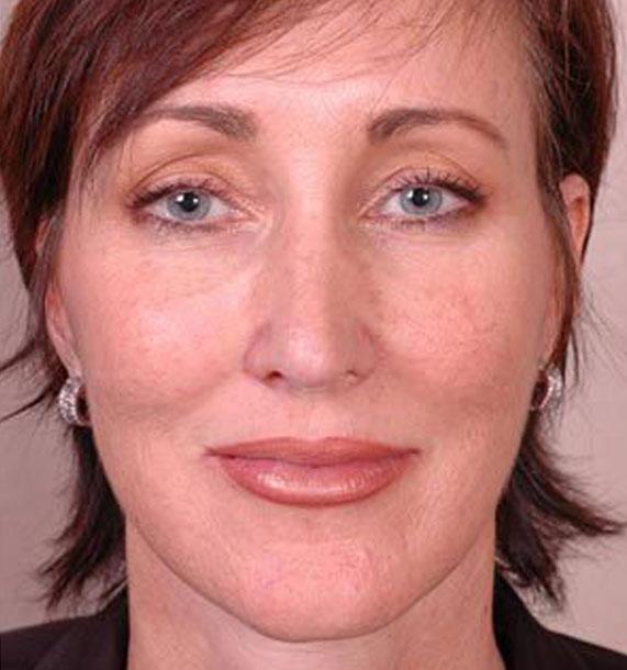 Mini Face Lift Procedure: After Treatment Photo - female, front view, patient 14