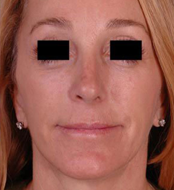 Facelift in my 60s - After Treatment Photo - female, front view, patient 2