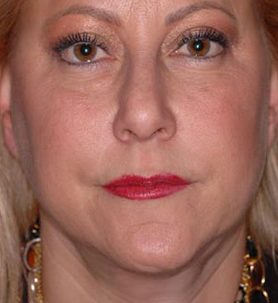 Facelift in my 60s - After Treatment Photo - female, frontal view, patient 4