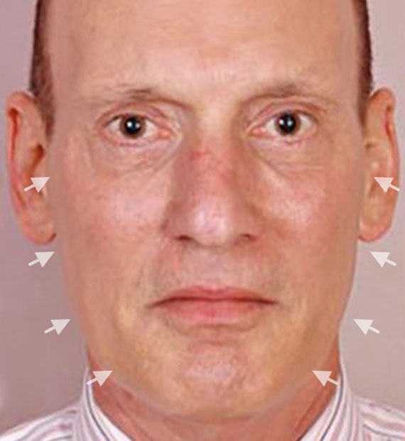 Facelift in my 60s - Before Treatment Photo - male, front view, patient 5
