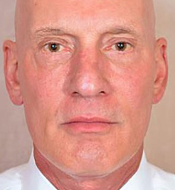 Facelift in my 60s - After Treatment Photo - male, front view, patient 5