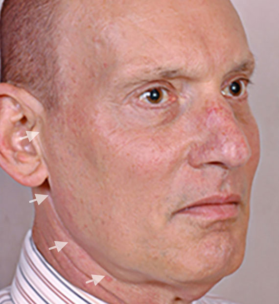 Facelift in my 60s - Before Treatment Photo - male, oblique view, patient 5