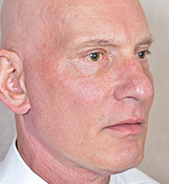 Facelift in my 60s - After Treatment Photo - male, oblique view, patient 5
