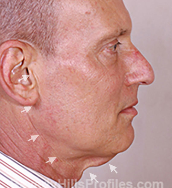 Facelift in my 60s - Before Treatment Photo - male, right side view, patient 5