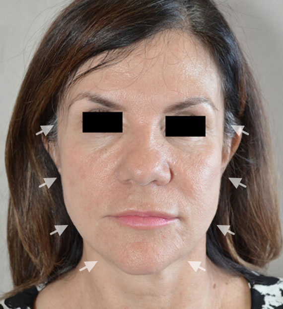 Facelift in my 60s - Before Treatment Photo - female, front view, patient 7