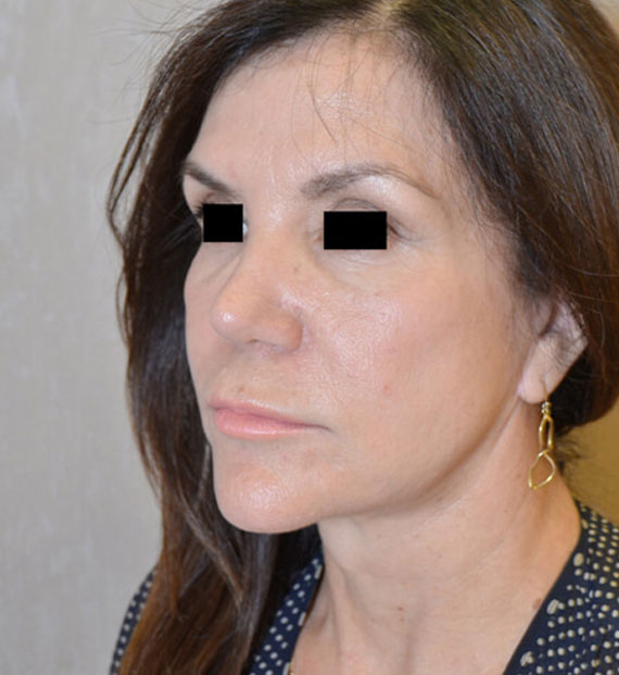 Facelift in my 60s - After Treatment Photo - female, oblique view, patient 7