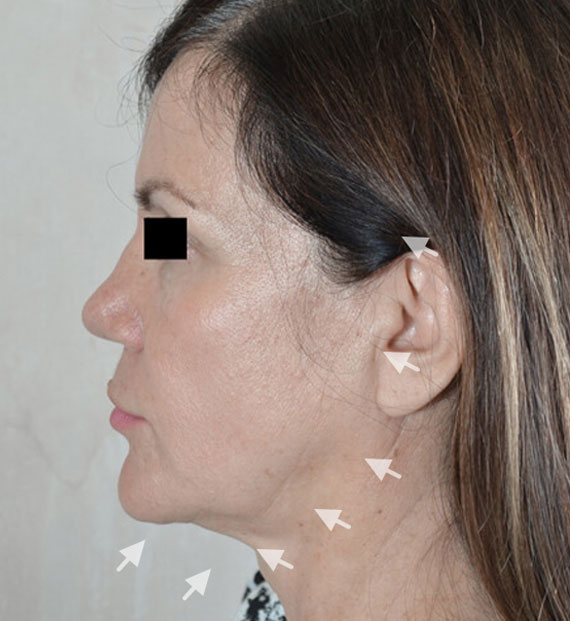 Facelift in my 60s - Before Treatment Photo - female, left side view, patient 7