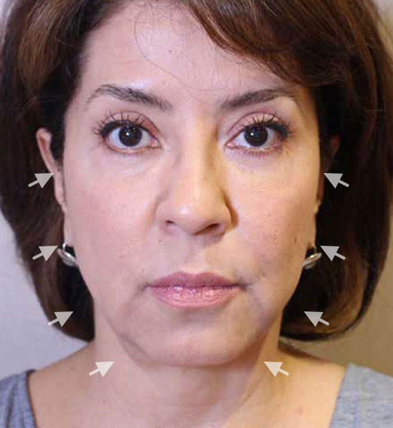 Facelift in my 60s - Before Treatment Photo - female, front view, patient 8