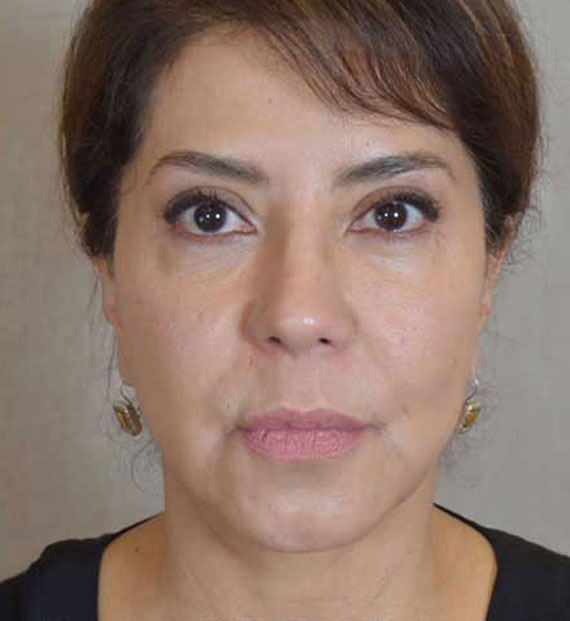 Facelift in my 60s - After Treatment Photo - female, front view, patient 8