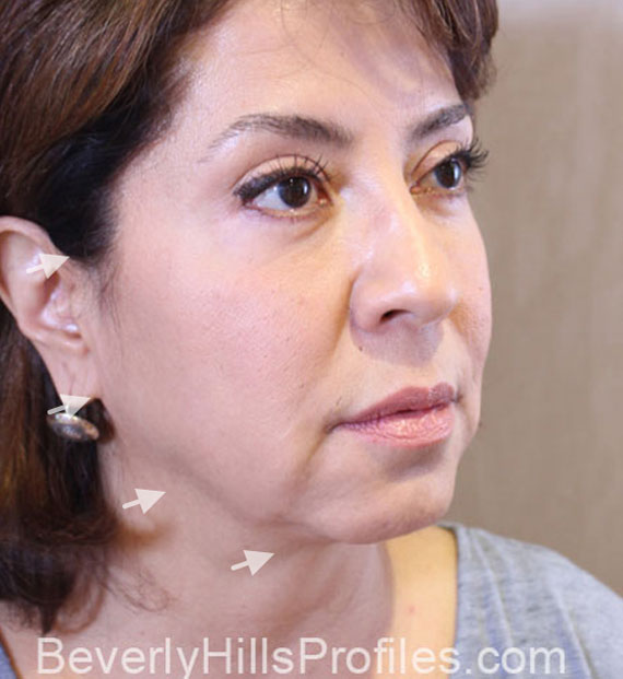 Facelift in my 60s - Before Treatment Photo - female, oblique view, patient 8