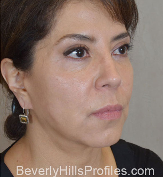 Facelift in my 60s - After Treatment Photo - female, oblique view, patient 8