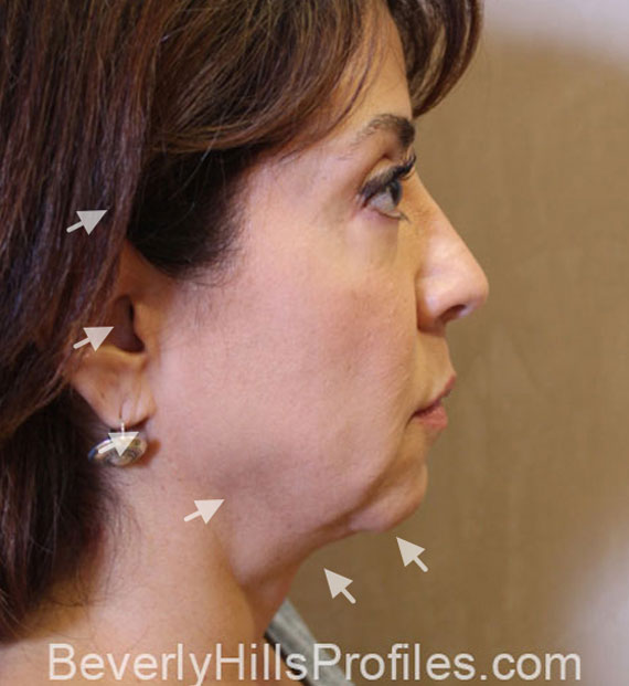 Facelift in my 60s - Before Treatment Photo - female, right side view, patient 8