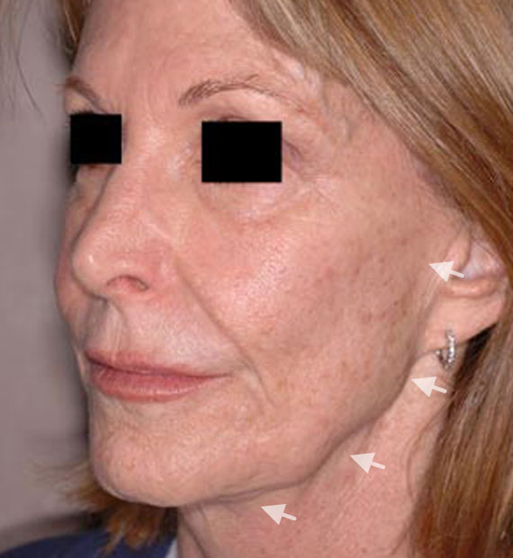 Facelift in my 60s - Before Treatment Photo - female, oblique view, patient 3