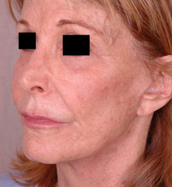 Facelift in my 60s - After Treatment Photo - female, oblique view, patient 3