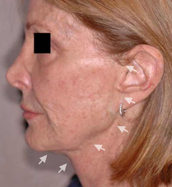 Facelift in my 60s - Before Treatment Photo - female, left side view, patient 3