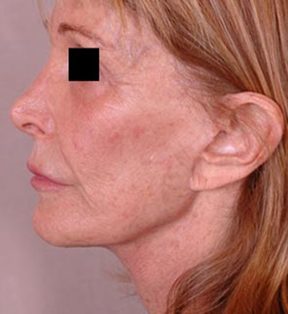 Facelift in my 60s - After Treatment Photo - female, left side view, patient 3