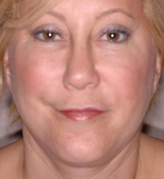 Facelift in my 60s - After Treatment Photo - female, front view, patient 4