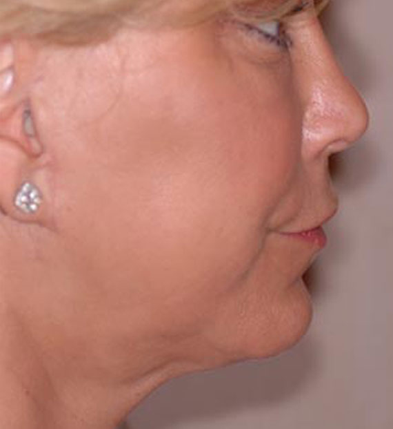 Facelift in my 60s - After Treatment Photo - female, right side view, patient 4