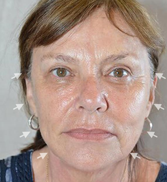 Facelift in my 60s - Before Treatment Photo - female, front view, patient 1