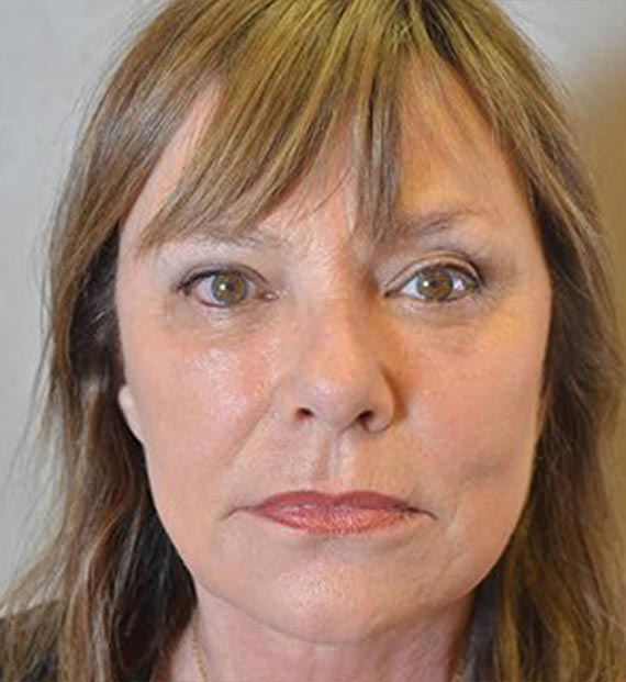 Facelift in my 60s - After Treatment Photo - female, front view, patient 1