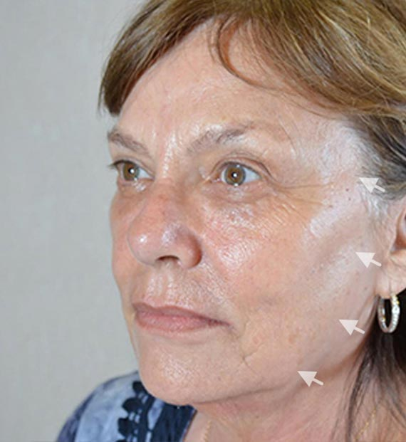 FaceLift - Before Treatment Photo - female, left side oblique view, patient 1