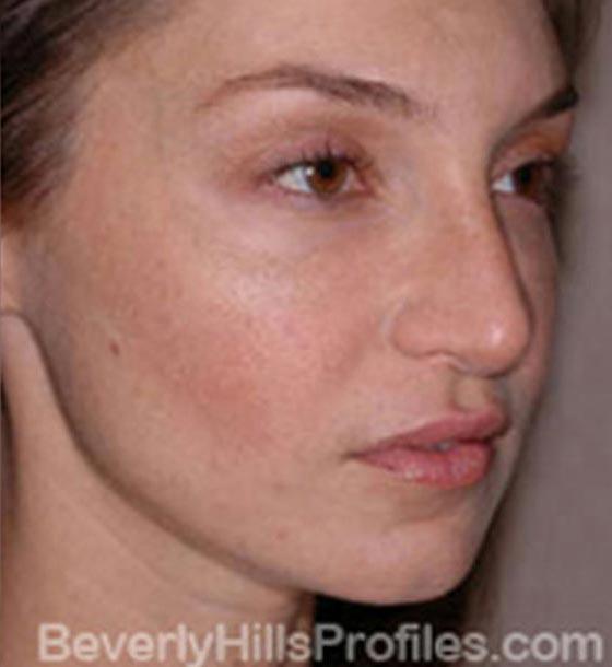 Fat Transfer. After Treatment photo, female - oblique view, patient 1