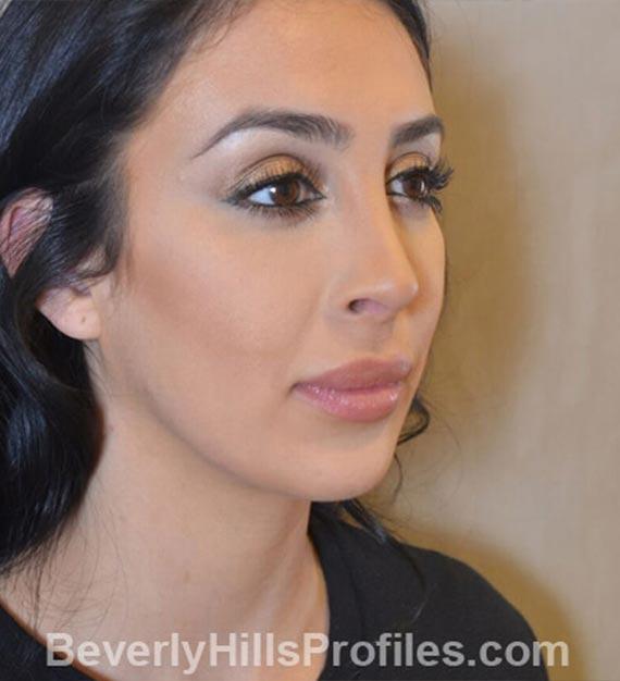 Fat Transfer. After Treatment photo, female - oblique view, patient 3