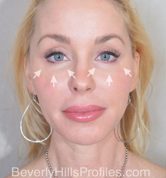 FaceLift - Before Treatment Photo - female, front view, patient 4