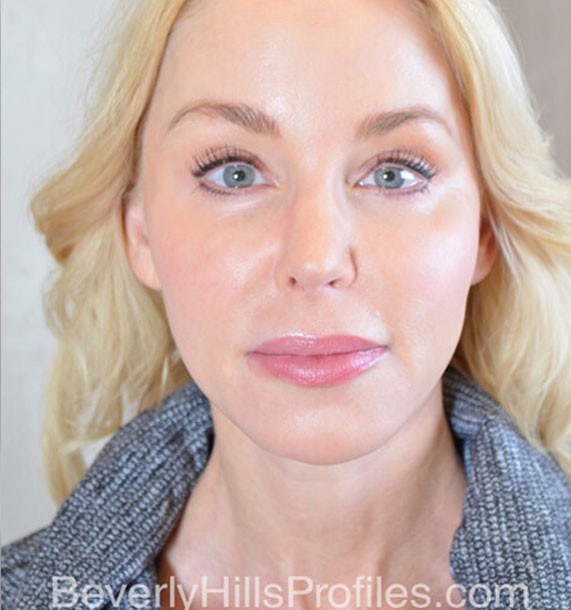 FaceLift - After Treatment Photo - female, front view, patient 4