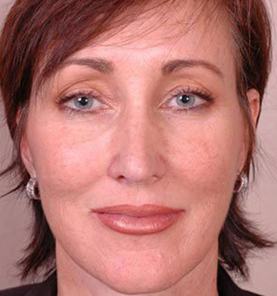 ANTI-AGING TREATMENTS IN MY 40S OR 50S - After Treatment Photo - female, front view, patient 1